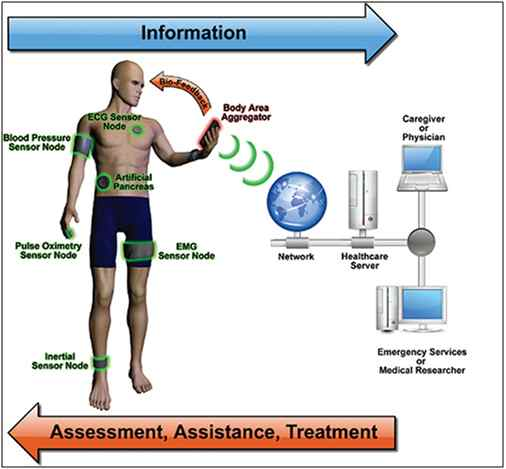 Sensors connected on a patient for Remote Health Monitoring